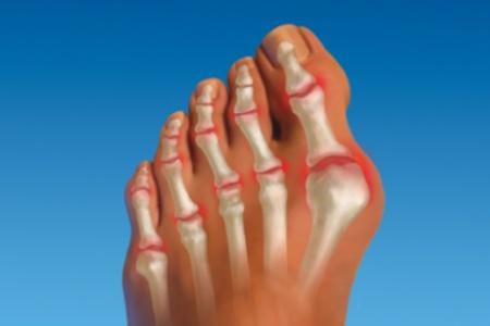суставы пальцев стопы