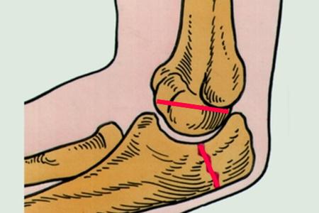 Места перелома локтевого сустава