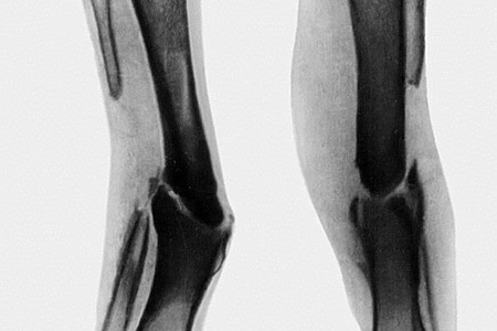 Псевдоартроз рентген