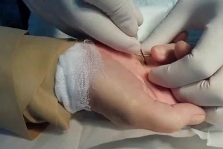 Малоинвазивная процедура