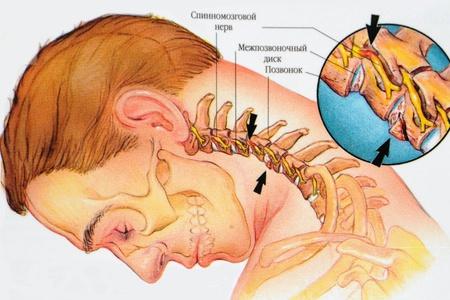 Лечебная физкультура при грыже шейного отдела позвоночника