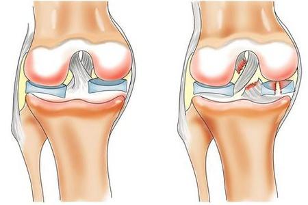 Здоровый и больной коленный сустав
