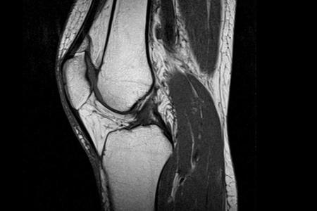 МРТ колена