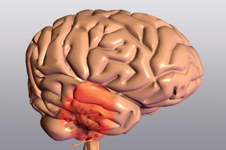 Как лечить гиперплазия эндометрия народными средствами отзывы