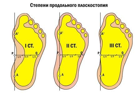 стопы