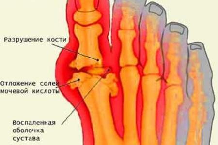 Подагрический артрит симптомы и лечение — hw11.ru
