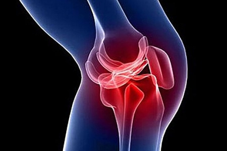 Болезненный коленный сустав