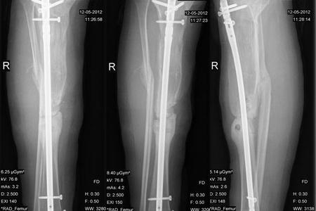Ложный сустав на рентгене