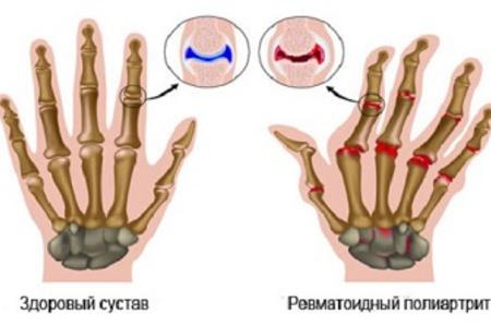 Ревматический полиартрит