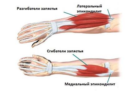Болят мышцы руки ниже локтя