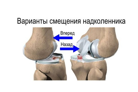 Смещение коленной чашечки