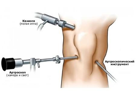 Артроскопические инструменты