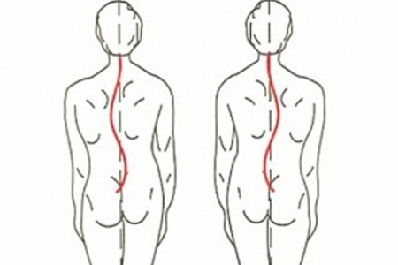 Поясничный сколиоз упражнения
