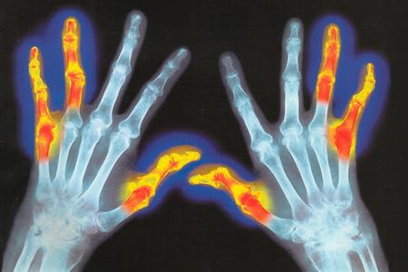 скелет рук