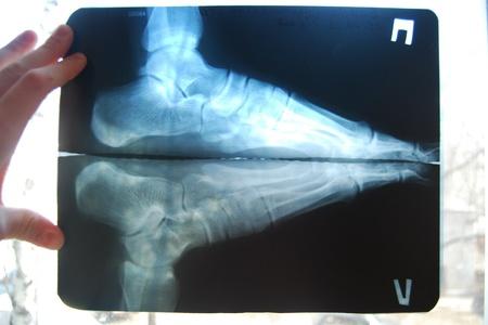 Рентген снимок стопы