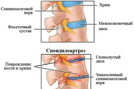 Хондроз поясничного отдела позвоночника: симптомы 50