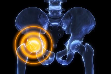 Тендинит тазобедренного сустава симптомы