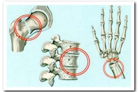 Виды остеопороза