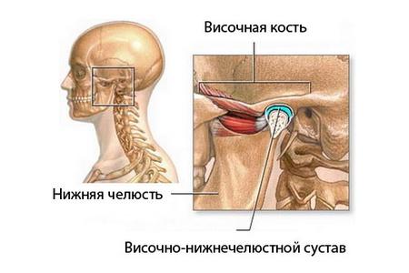 Артроз челюстного сустава лечение