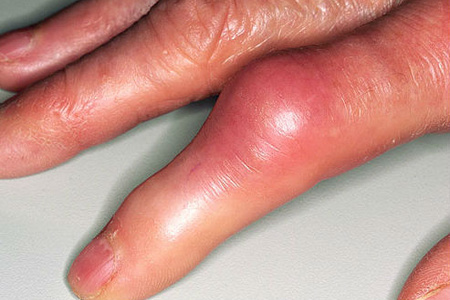 Воспаление суставов кисти
