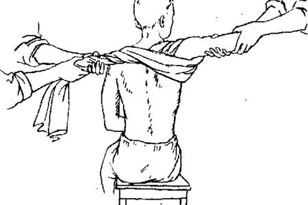 Вправление плечевого сустава