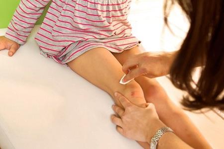 Боль в колене у девочки