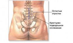Симптомы и лечение артроза крестцовых сочленений