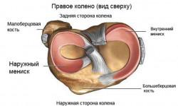 Диагностика и классификация повреждений менисков