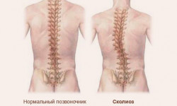 Лечение сколиоза позвоночника