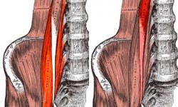 Патология глубоких мышц спины