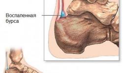 Бурсит пятки (пяточный бурсит)- что это, его симптомы и как лечить?