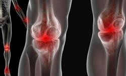 Реактивный артрит (артропатия) — симптомы болезни, диагностика, лечение