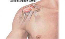 Бурсит: причины, симптомы и лечение болезни