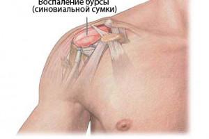 Бурсит плечевого сустава: причины развития заболевания, диагностика и лечение