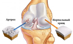 Артроз коленного сустава (гонартроз): диагностика и лечебные мероприятия