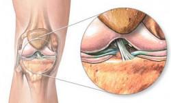 Что такое лигаментоз коленного сустава и позвоночника?