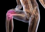 Что делать, если вылетает колено (нестабильность коленного сустава)?
