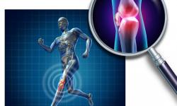 Разрыв, надрыв и растяжение связок коленного сустава