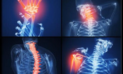 Болезни позвоночника и суставов, лечение