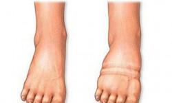 Отёк ноги ниже коленного сустава: причины и лечение болезни