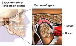 Анатомия и патология височно-нижнечелюстного сустава