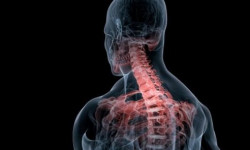 Шейный сколиоз — методики лечения и профилактика