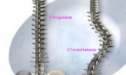 S- и C-образный сколиоз 1,2,3 степени: особенности развития, лечебная гимнастика