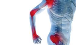 Основные симптомы и принципы лечения блуждающего артрита