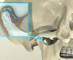 Лечение артрита челюстно-лицевого сустава