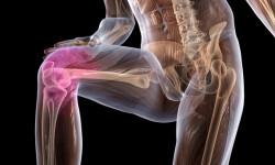 Симптоматика и лечение остеопороза коленного и голеностопного суставов