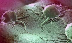 Новое устройство позволяет легко определить агрессивность опухоли