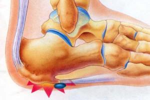 Костно-хрящевой экзостоз (остеохондрома): причины развития и лечение. Средства народной медицины