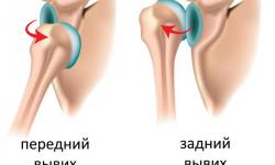 Диагностика и лечение вывиха плечевого сустава