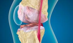 Как лечить пателлофеморальный артроз (синдром) коленного сустава